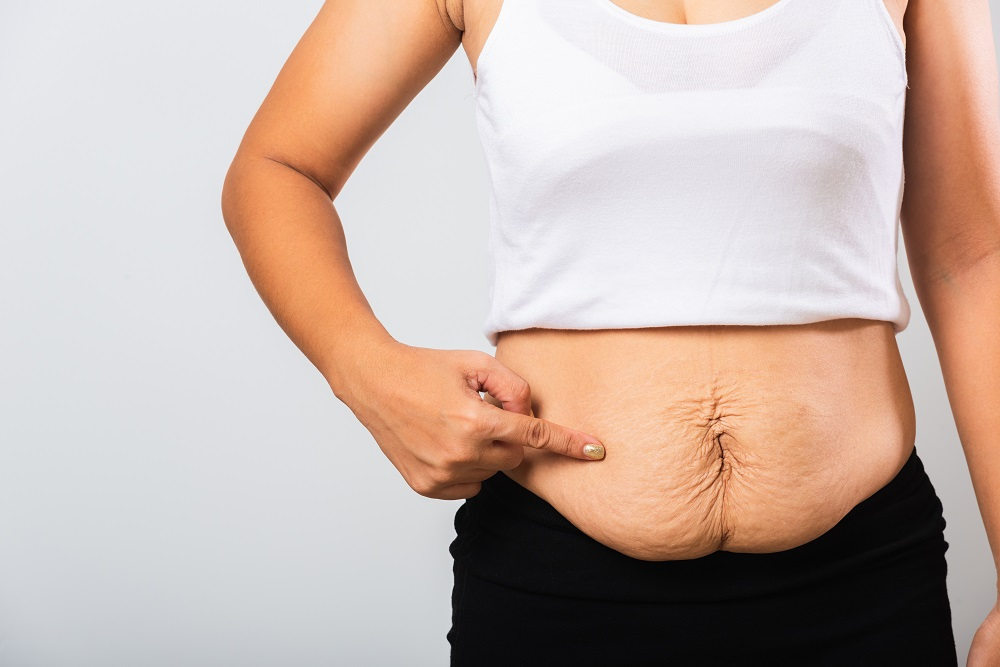How To Tighten Loose Sagging Skin After Bariatric Surgery Dr Jalil Illan